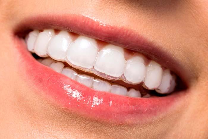 Alineadores ortodoncia invisible