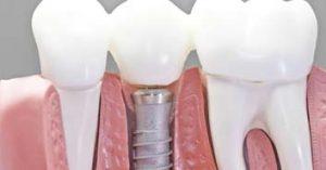 puente en diente