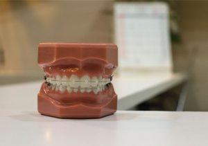 protesis dental clinica