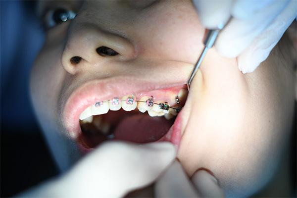 ortodoncia zaragoza